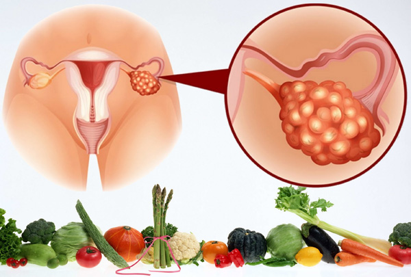 Поговорим о правильной диете, как составляющей терапии при поликистозе яичников...